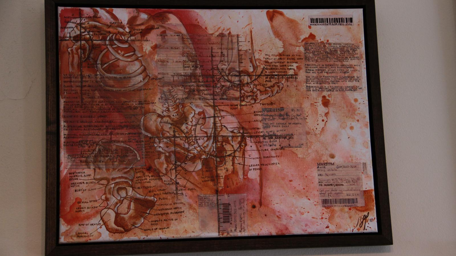 Manrique's mixed media medical paintings